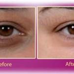 Urdu Tips to Remove Dark Circles Under Eyes آنکھوں کے گرد سیاہ حلقے
