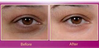 Urdu Tips to Remove Dark Circles Under Eyes