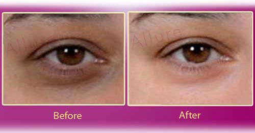 Urdu Tips to Remove Dark Circles Under Eyes