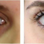 Dark Circles Under Eyes Treatment Tips Home Remedies Urdu