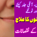 Urdu Tips Totkay For Oily Skin Whitening, Acne Scars Hair Loss