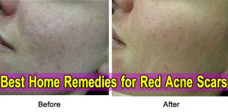 Before After-Scar Red Acne Scars Home Remedies, Redness Mask Removal, Treatment