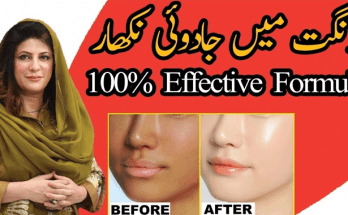 Dr Bilquis Sheikh Tips for Fairness, Face Oil, Pimples