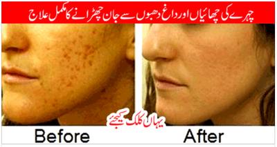 How To Remove Dark Spot, Blackheads, Acne, Pimples