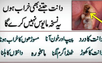 Tooth Decay Home Remedy