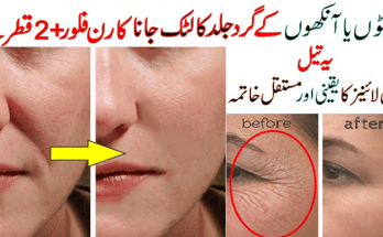 Anti Aging and Anti Wrinkles Treatment