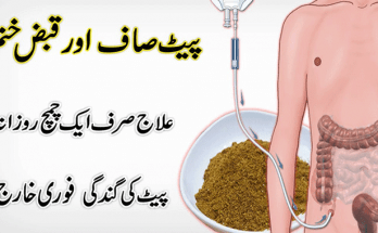 Constipation-causes-treatment