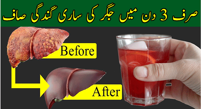 Detox and Cleanse Your Liver Naturally