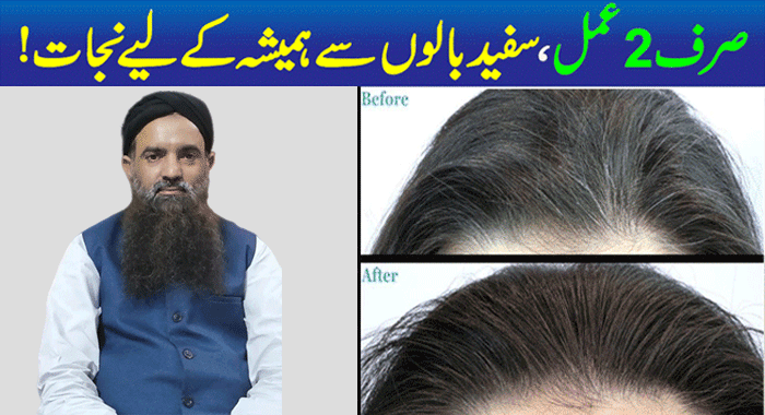 Grey Hair Causes and Treatment