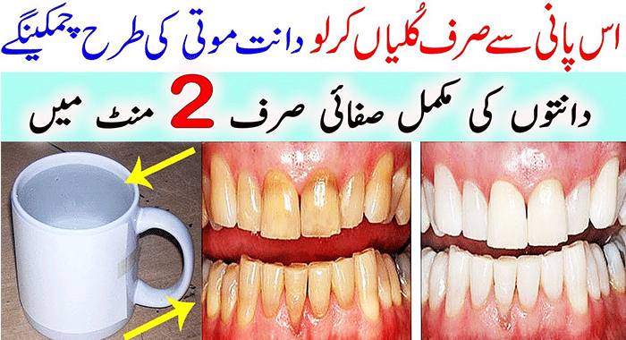 This Will Whiten Your Teeth In 2 Minutes