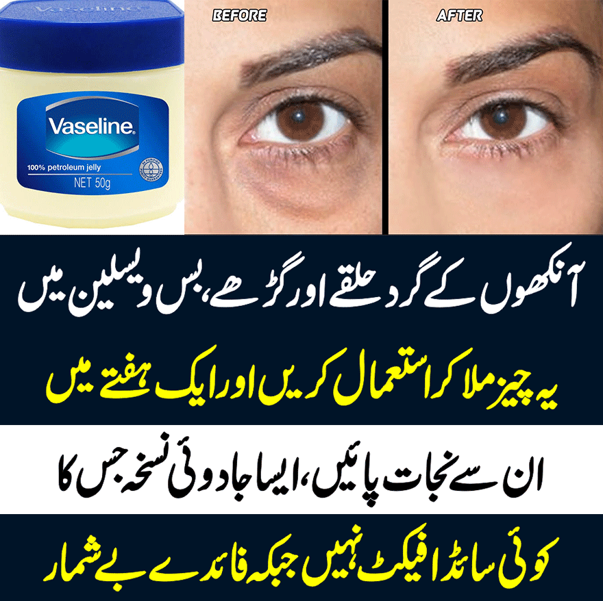 Get Rid of Dark Circles Under Eyes Natural Home Remedies