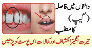 Gap in Teeth Meaning
