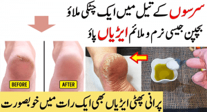 How-to-Heal-Dry,-Cracked-Heels-in-Winter,-Tips-and-Home-Remedies