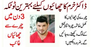 Skin Pigmentation Treatment Dr Khurram Mushir