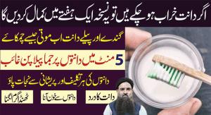 Teeth Whitening Naturally Dr Sharafat Ali