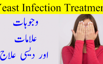 Vaginal Yeast Infection, Causes and Treatment