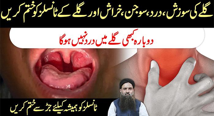 Home-Remedy-to-Treat-Sore-Throat