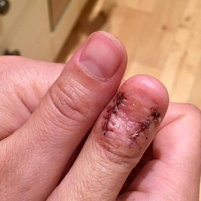 cancer nail