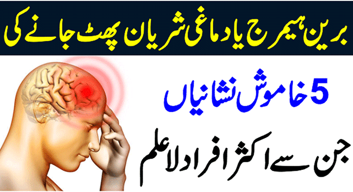 What is Brain Hemorrhage
